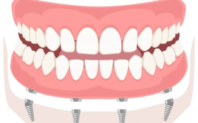 What Are Full Arch Dental Implants and Are They Right for Me?