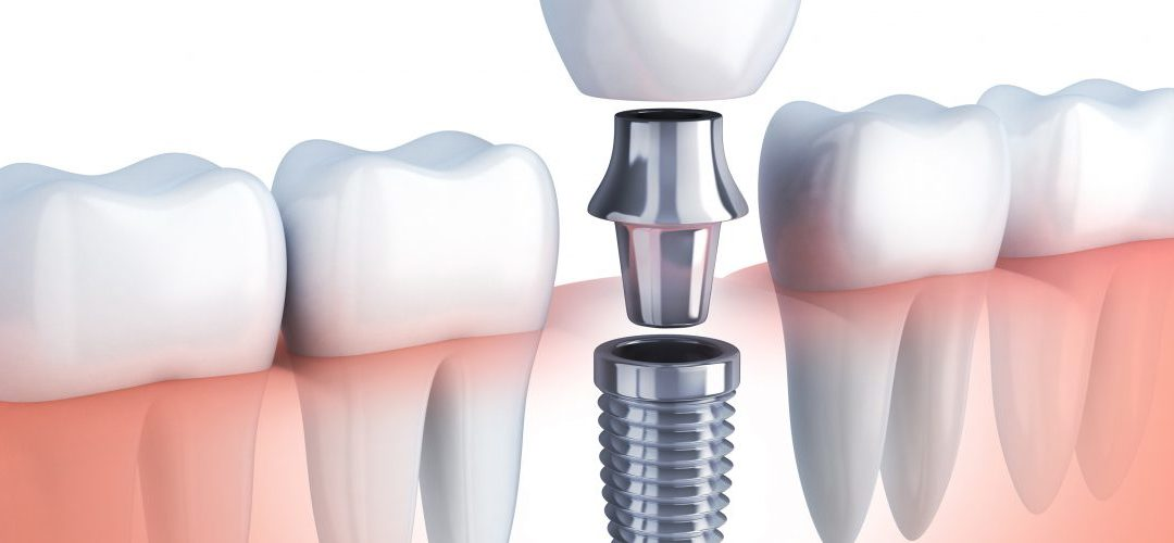 How Much Will Dental Implants End Up Costing Me?