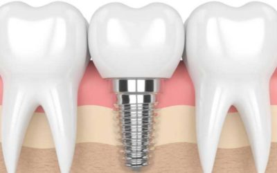 The Long-Term Benefits of Dental Implants