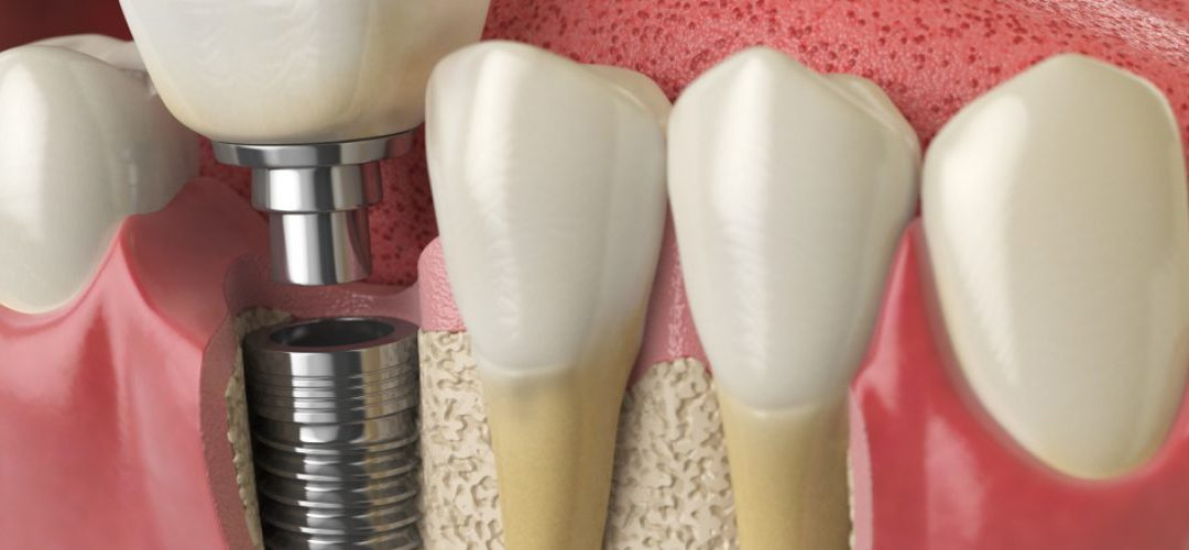 Does Severe Bone Loss Disqualify Me from Dental Implants?