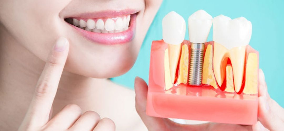 Replace Missing Teeth with Dental Implants by the Holidays