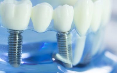 Are Your Dental Implants in Need of a Restoration?