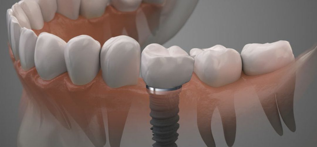 What Every Patient Should Know About Dental Implants
